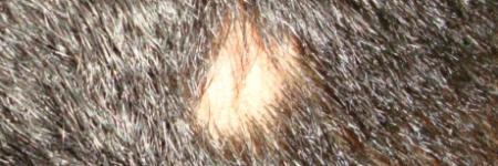 alopecia areata patches
