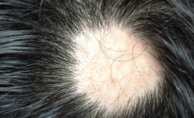 alopecia areata symptoms hair