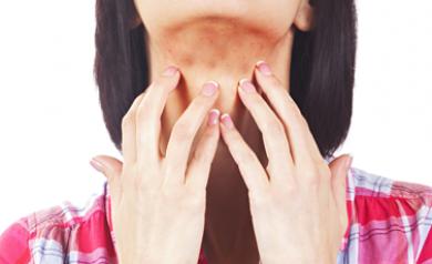 psoriasis symptoms