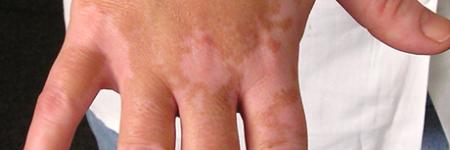 vitiligo symptoms