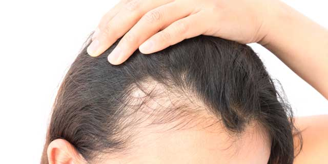 Specialty in Hair Loss Treatment