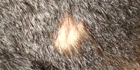 alopecia areata patches