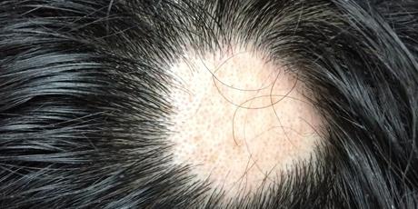 alopecia areata symptoms hair