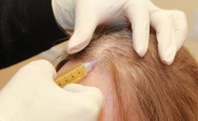 alopecia areata treatment