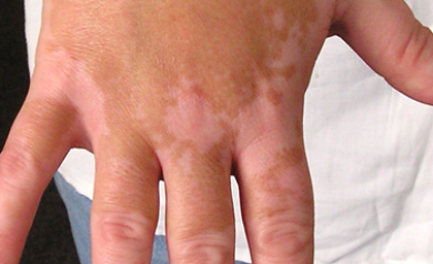 vitiligo symptoms