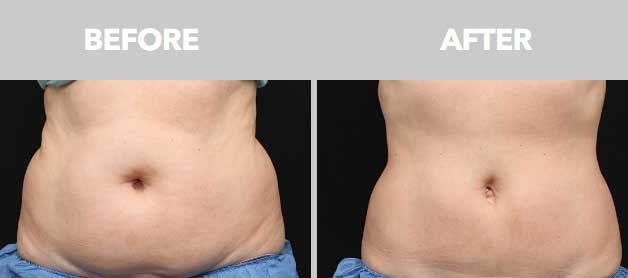 CoolSculpting Before After 01