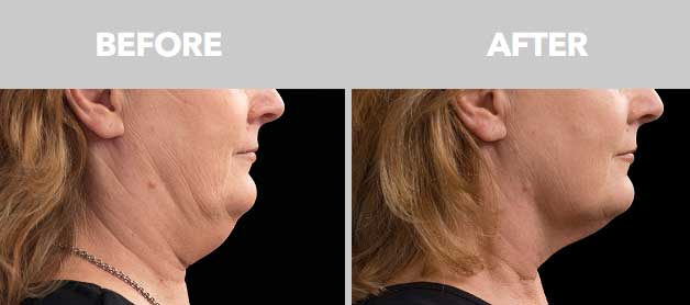CoolSculpting Before After 03