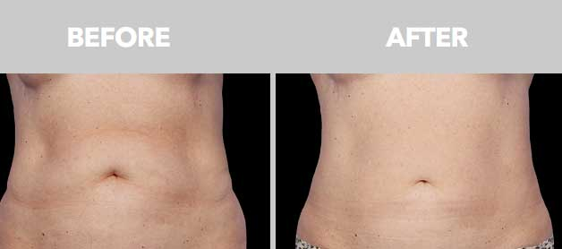 CoolSculpting Before After 05